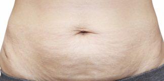 Como eliminar a flacidez depois da dieta