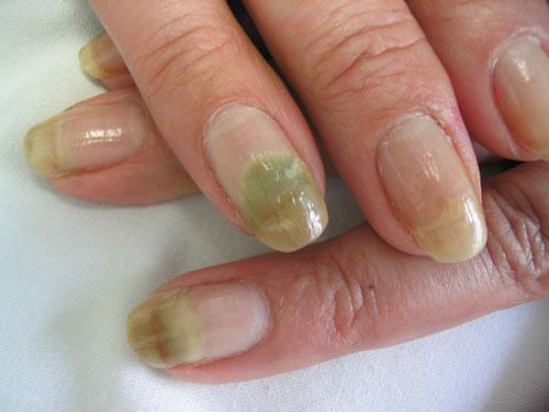 Micose nas unhas das mãos – Como tratá-las – Tipos de tratamentos