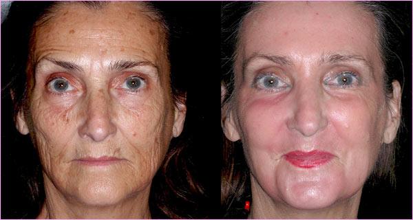 Oa ácidos tem o potencial de eliminar manchas na pele e rejuvenescê-la.