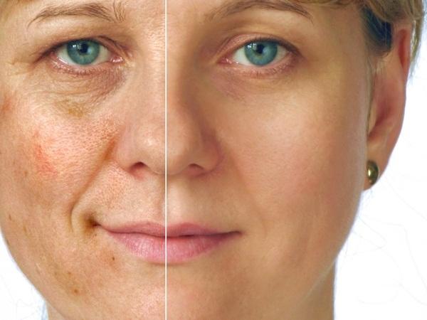 Ácido retinoico e glicólico para a pele
