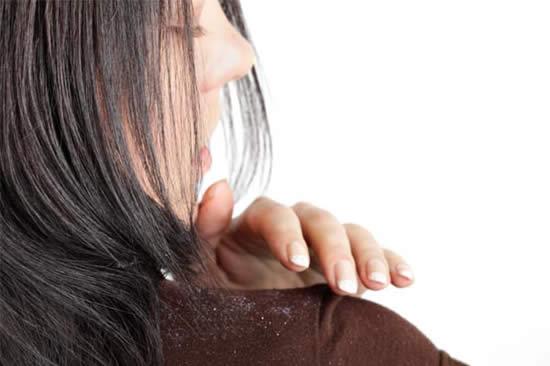 A caspa é um problema que incomoda muito as mulheres
