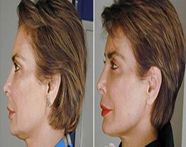 Aparelho dentário pode rejuvenescer o rosto