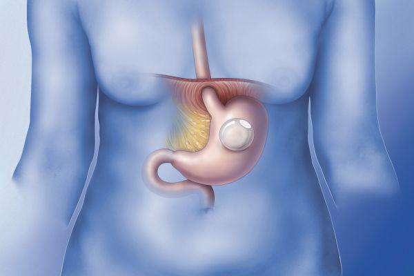 Balão intragástrico - Benefícios