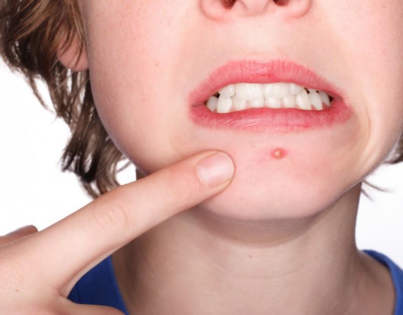 Elimine a acne com esses seis nutrientes (Foto: Divulgação)