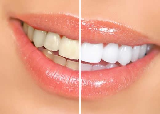 Tratamentos para clarear os dentes