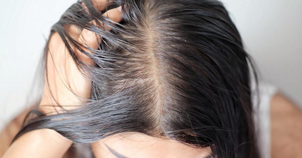 cabelos muito oleosos