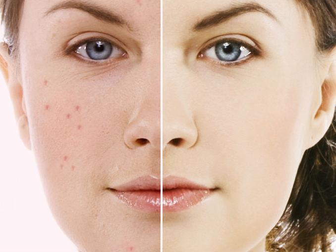 Maquiagem Anti Acne Funciona?