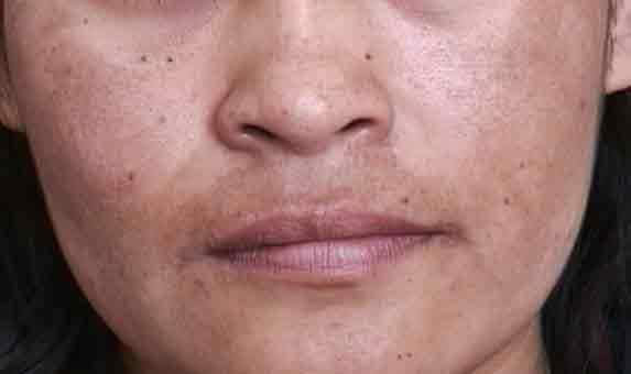 Manchas na pele: como prevenir e tratar