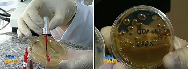 Química-dos-esmaltes-não-mata-fungos-das-unhas-01