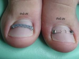 A saúde das suas unhas