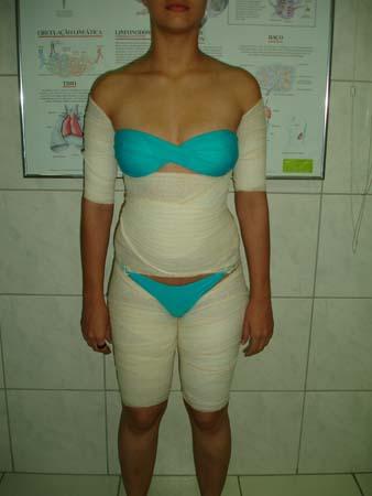 Bandagem-Redutora-Como-Fazer-02