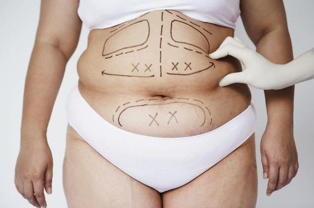 O que você precisa saber sobre a cirurgia plástica de redução