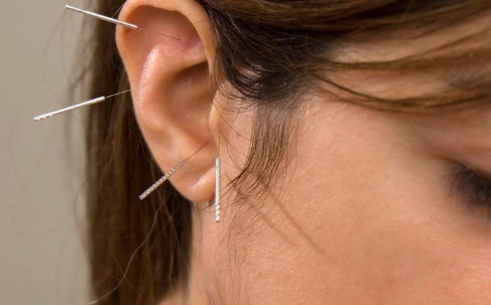 Saiba como emagrecer com a acupuntura auricular