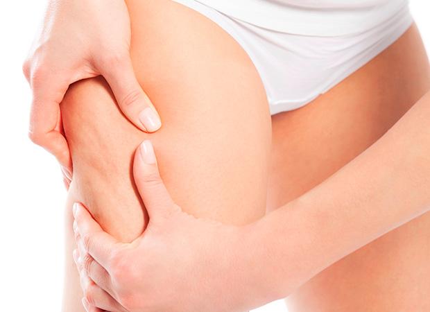 Tratamento-diminui-celulite-e-gordura-localizada-02