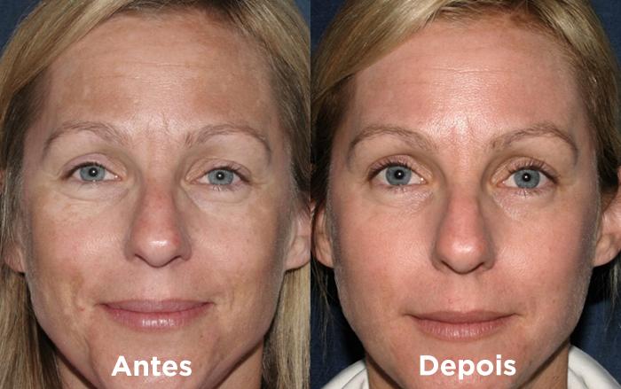 Antes e depois do melasma