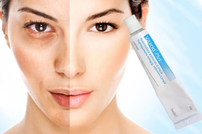 Vitacid Plus ideal para eliminar manchas da pele – como usar