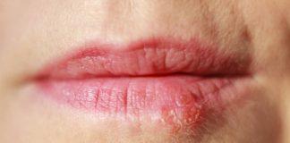Como curar o herpes labial