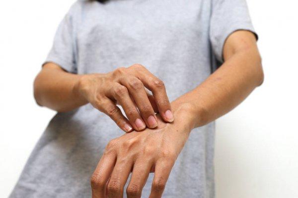 Óleo de melaleuca para tratar de manchas na pele