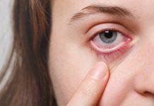 O perigo do olho vermelho